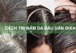 6 cách trị nấm da đầu dân gian hiệu quả và an toàn ngay tại nhà