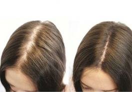 6 cách kích thích mọc tóc nhanh tại nhà  bằng nguyên liệu tự nhiên