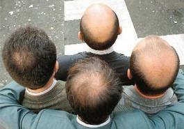 Làm sao để ngăn ngừa hói đầu do di truyền?
