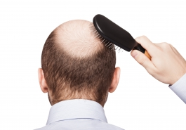 Rụng tóc ở nam giới: Những câu hỏi thường gặp