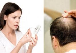 Người bị rụng tóc nhiều uống thuốc gì an toàn, hiệu quả?