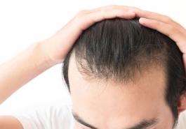 Thuốc mọc tóc có hiệu quả không?