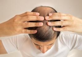 Mẹo dân gian kích thích mọc tóc tại nhà hiệu quả
