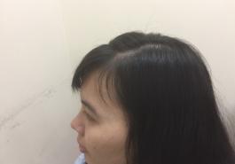 Nghe chị Hạnh Dung kể về thời gian kiên trì phục hồi tóc và kết quả bất ngờ