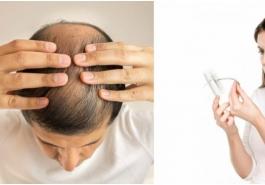 Bệnh rụng tóc và cách chữa trị hiệu quả tại nhà
