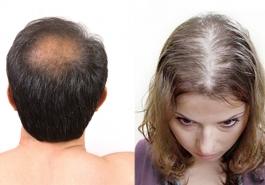 Phân biệt rụng tóc sinh lý và rụng tóc bệnh lý