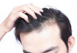 Da đầu nhờn: Nguyên nhân và cách khắc phục hiệu quả nhất