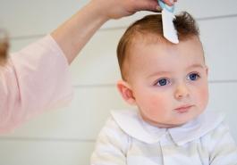 Hiểu rõ về tình trạng rụng tóc ở trẻ sơ sinh