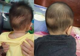 Trẻ bị rụng tóc vành khăn phải làm sao?