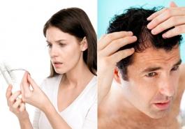 Phụ nữ hay nam giới quan tâm đến tình trạng rụng tóc nhiều hơn?