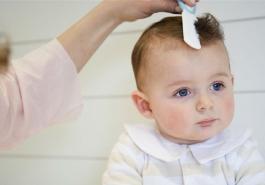 Rụng tóc hình vành khăn ở trẻ: Nguyên nhân và cách điều trị