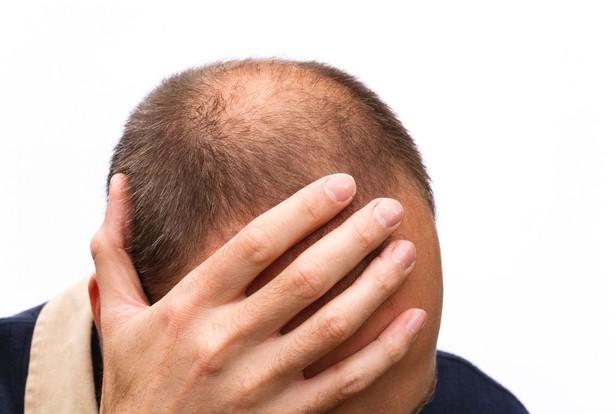 Kết quả hình ảnh cho rụng tóc do di truyền